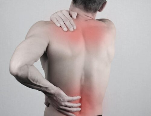 How to Use CBD Oil Topically for Back Pain